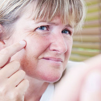 Removing skin tags will not cause more to grow.