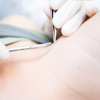 Removing skin tags can be done with home remedies or by a physician.