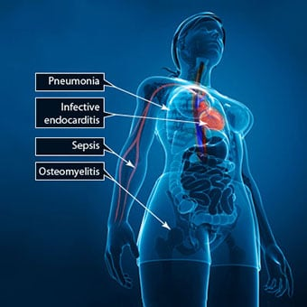 Illustration shows other diseases caused by staph.