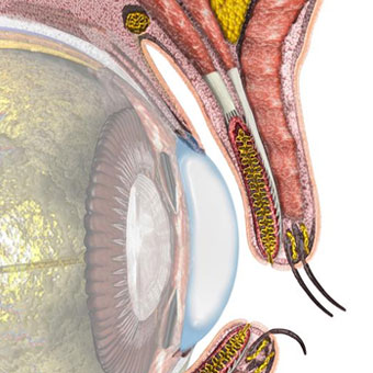 An illustration of the eye