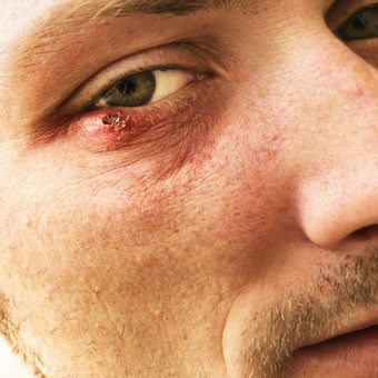 Complications of a sty include cellulitis and conjunctivitis.