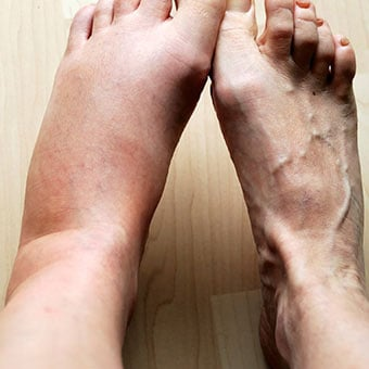 Painful foot swelling and ankle swelling can result from pregnancy, injury, or other medical diseases and conditions.