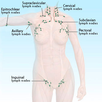 A full body illustration of surface lymph node locations with names.
