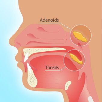 Alt TextTonsillectomy and adenoidectomy surgery can improve sleep.
