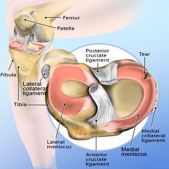 Illustration of a torn meniscus.