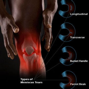 Joint overlay of a man's knee and types of meniscus tears.