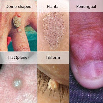 Examples of (1) dome-shaped wart, (2) plantar wart, (3) flat (plane) wart, (4) periungual wart, and (5) filiform wart.