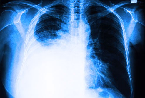 Chest X-rays can detect pleural effusions, which often appear as white areas at the lung base.