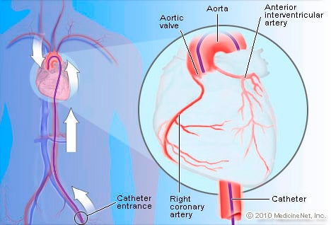Picture of Heart Catheter