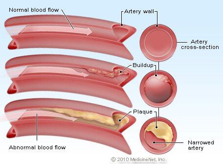 Picture of an artery clogged with cholesterol plaque