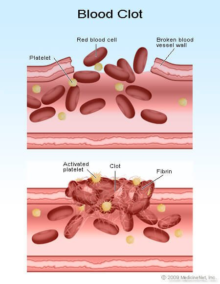 Picture of platelets and a blood clot