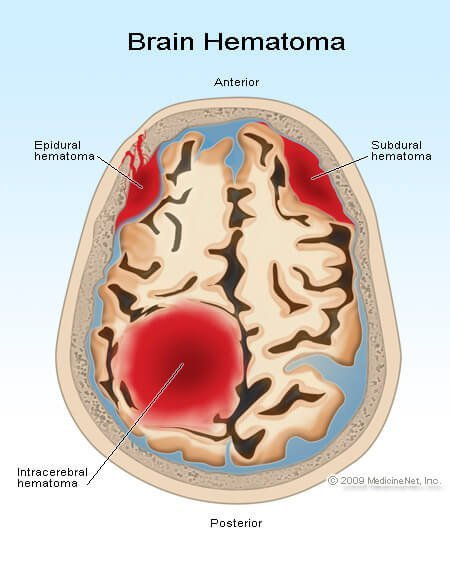Picture of an epidural, subdural, and intracerebral hematomas