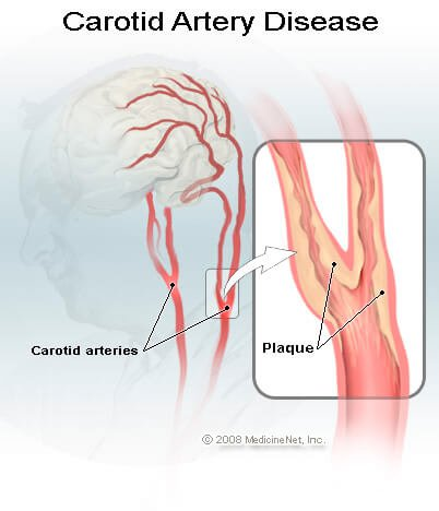 Picture of carotid artery disease and plaque buildup.