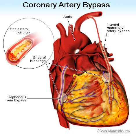 Picture of coronary artery bypass