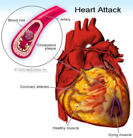 Heart Attack illustration - Coronary Artery Disease Screening Tests
