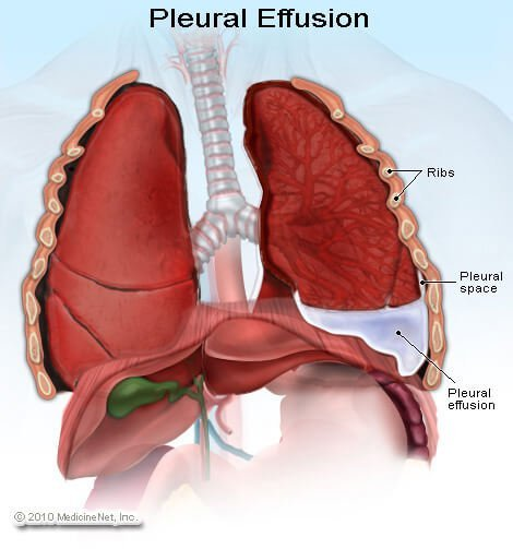 Picture of pleural effusion