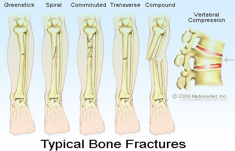 Bone Fractures Illustration - Open fracture