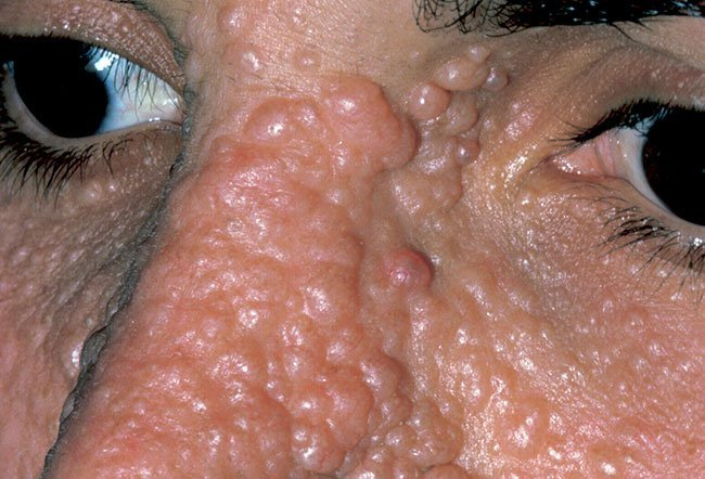 Picture of Angiofibroma (Forehead) on RxList