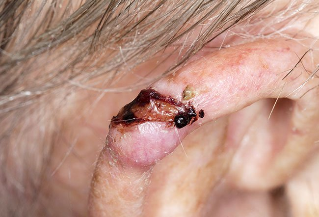 Picture of Basal Cell Carcinoma (Ear)
