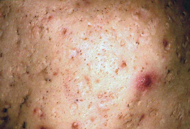 Picture Of Ice Pick Scars On Rxlist