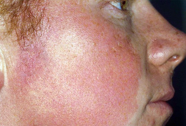 Picture of Keratosis Pilaris Atrophicans on RxList