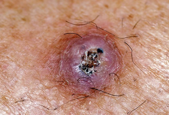 Picture Of Skin Cancer Picture Image On Rxlist Com