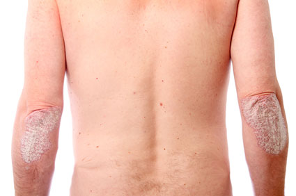 Picture of psoriasis on the elbows