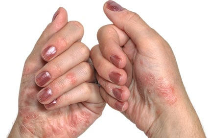 Picture of psoriasis on the hands