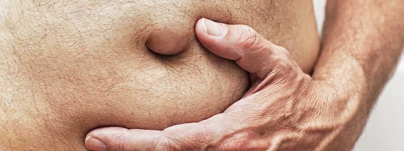 Hernia Facts: Pain, Types, Surgery, and Recovery Time