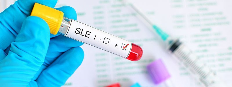 Faqs Systemic Lupus Erythematosus Sle Lupus Frequently Asked
