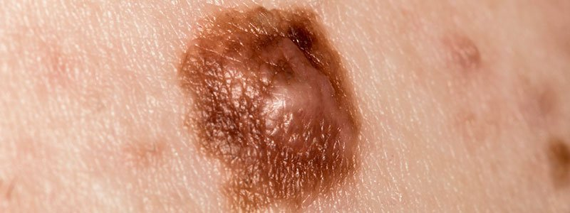 A man's back with moles, cysts, cherry angiomas, and freckles.