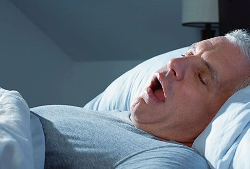 A man sleeps with his mouth wide open.