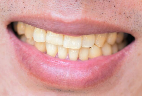 A few studies show that toothpaste with baking soda whitens your teeth better than the kind without it.