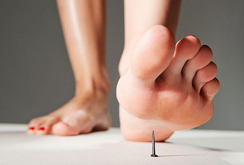 Puncture wounds happen more often in summer, when bare feet meet nails, glass, toothpicks, and seashells.