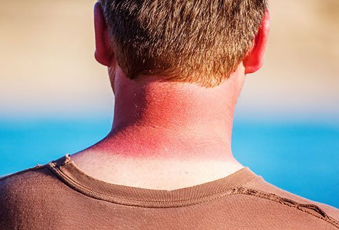 Seek the shade, wear sunscreen, wear long sleeves and long pants, and avoid midday sun to practice sun safety.