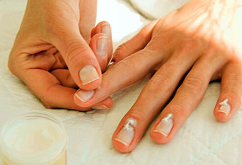 If your hands are often in water -- especially if you use strong soap -- your nails may split, peel, or become brittle.