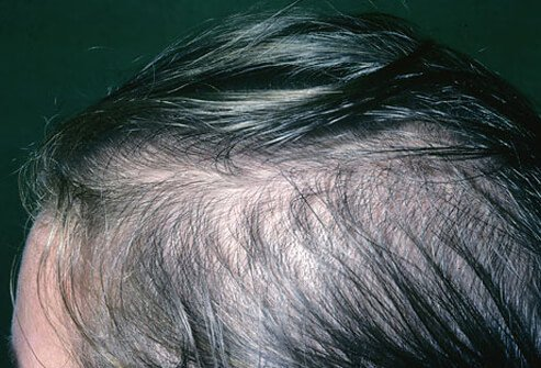 Hair loss in women is more common than you might think.