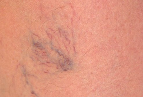Women with jobs that keep them on their feet are more likely to develop spider veins.