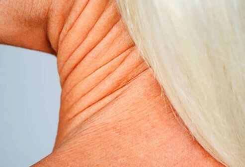 If you've lost a lot of weight, you may have extra skin hanging around the neck.