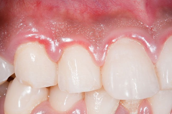 This gum infection may cause serious glucose changes in your blood, too.
