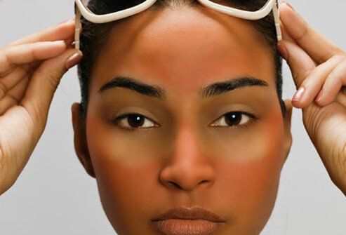 Sun exposure can be dangerous for your skin.