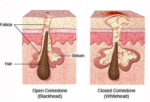 Comedones are clogged pores that fill with sebum (oil and cellular debris).