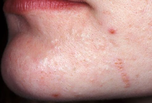 Acne may be mild.