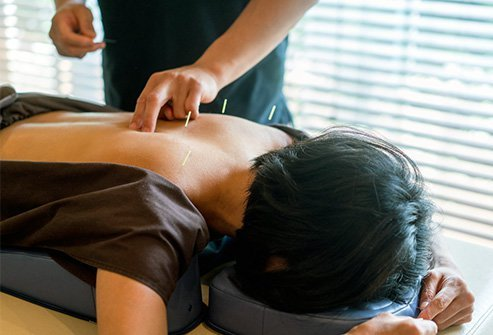 Acupuncture is a healing art that originated in China and is primarily used for pain relief.
