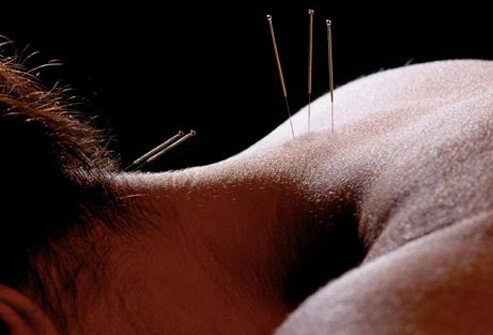 At least 20 percent of patients suffering from fibromyalgia will try acupuncture as a treatment.