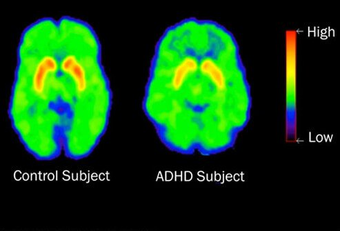 In people with ADHD, brain chemicals called neurotransmitters are less active in areas of the brain that control attention.