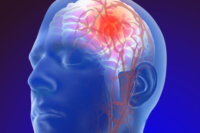 Consuming alcohol when recovering from a stroke may lead to brain problems and interactions with blood-thinners like warfarin.