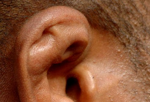 Common among wrestlers, this is caused by repeated hits and cuts to the ear.