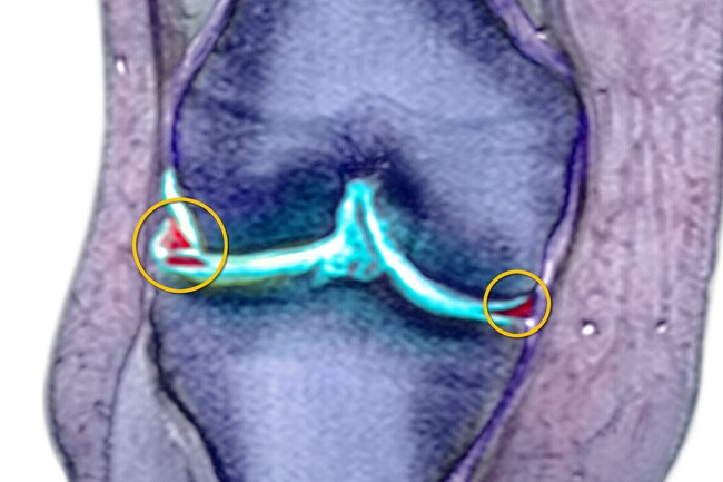 This common knee injury often happens along with others, like a torn ACL.