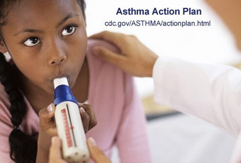 An asthma action plan tells you what to do for symptoms of mild asthma to symptoms of severe asthma.